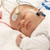 Brainstem Evoked Response Audiometry