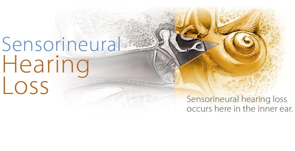 Sensorineural-Hearing-Loss